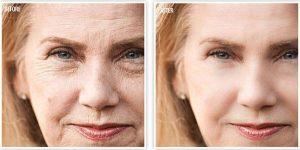 DermaNova Pro λειτουργία, συστατικα, collagen