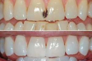 Denta Seal οδοντόκρεμα - λειτουργία, συστατικα