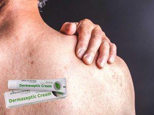Dermaseptic cream - λειτουργία, συστατικα, πωσ εφαρμοζεται?