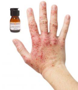 Mibiome σταγόνες, συστατικα - πώς να εφαρμόσετε;